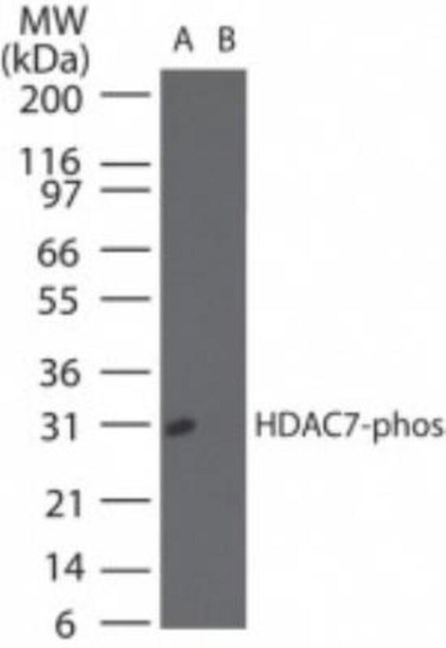 anti-HDAC9 (p Ser155), Polyclonal, Novus Biologicals:Antibodies:Primary